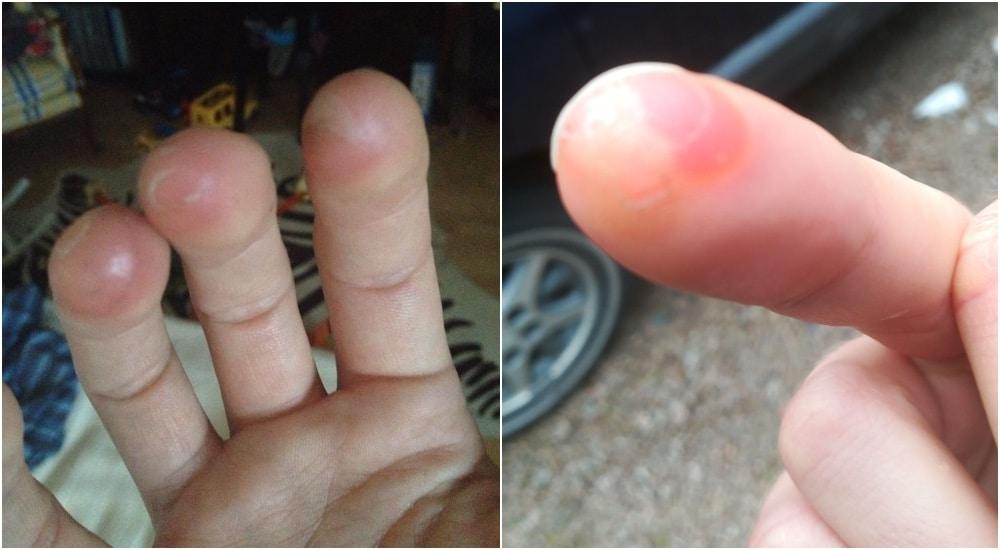 Äänitysvinkki: liian intensiivinen albumiäänitys voi aiheuttaa rakkuloita mm. sormiin